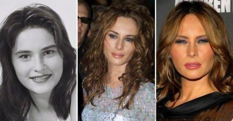 چهره همسر ترامپ قبل و بعد از جراحی پلاستیک/عکس